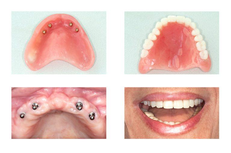 Denture with Implants